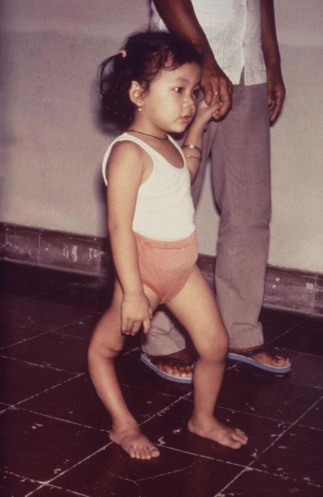 Une petite fille victime de la poliomyélite (image d'archive, CDC)