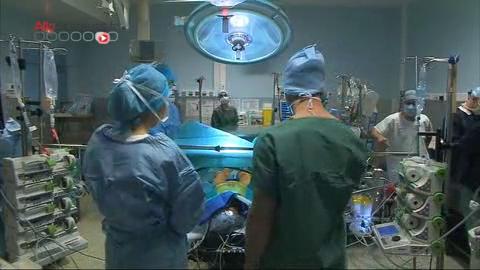 Attention images de chirurgie !  Le segment de l'artère malade est remplacé par une prothèse.