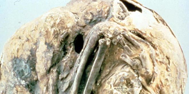 Détail d'un lithopédion conservé par les archives médicales militaires des États-Unis. Celui-ci est resté 55 ans dans le ventre de sa porteuse. (Source : Otis Historical Archives of ''National Museum of Health & Medicine'' cc-by-sa)