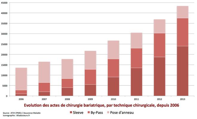 Evolution des actes de chirurgie bariatrique en France, par technique chirurgicale, entre 2006 et 2012 (cliquer sur l'image pour l'agrandir).