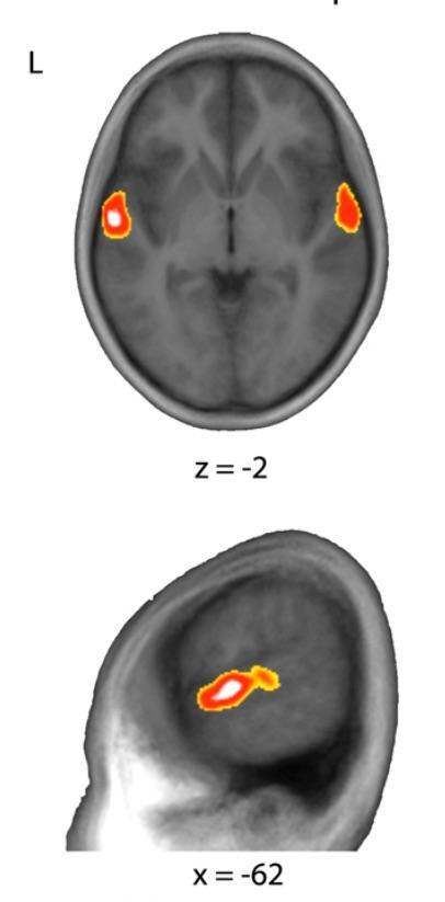 Zone spécifiquement activée lors de l'écoute des sons et tonalités du chinois mandarin (les niveaux d'activation des zones non spécifiques ont été soustraits aux résultats). Source : PNAS