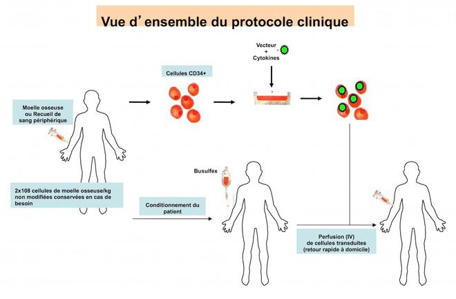 Schéma du protocole clinique (source : AFM-Téléthon)