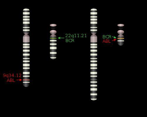 Représentation schématique de la formation du chromosome de Philadelphie (cc-by-sa Obeidat / Uegly).