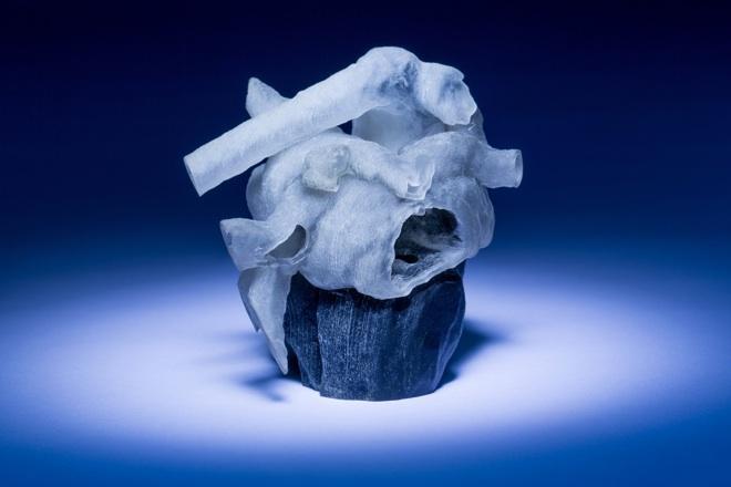 A terme, ces modèles 3D pourraient servir à réaliser des prothèses cardiaques sur mesure.