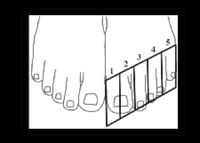 Notre gros orteil occupe deux cases au lieu d'une, si bien que les autres doigts de pied chevauchent les cases suivantes.