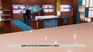 Marina Carrère d'Encausse et Michel Cymes expliquent la polypose colique.