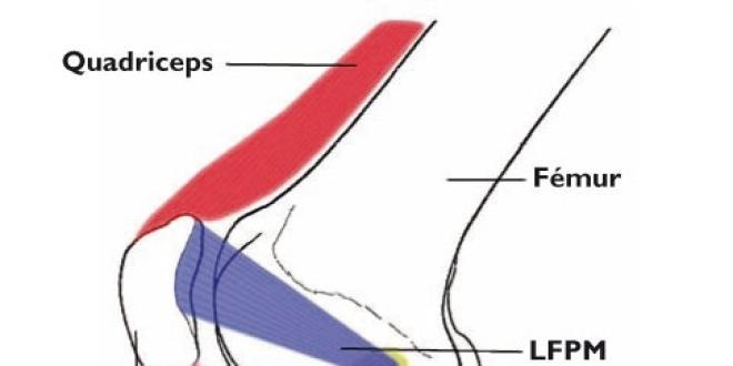 LFPM : ligament fémoro patellaire médial; LLI : ligament latéral interne