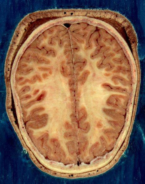 Vision d'un cortex cérébral méttant en évidence la matière blanche ©National Library of Medicine