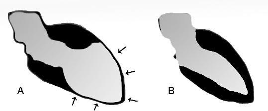 Schémas du ventricule gauche au cours d'un tako-tsubo (A), comparé à un ventricule gauche normal (B). (cc-by-sa J. Heuser)