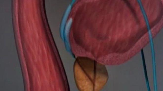 Traitements du cancer de la prostate : des ultrasons à la photothérapie