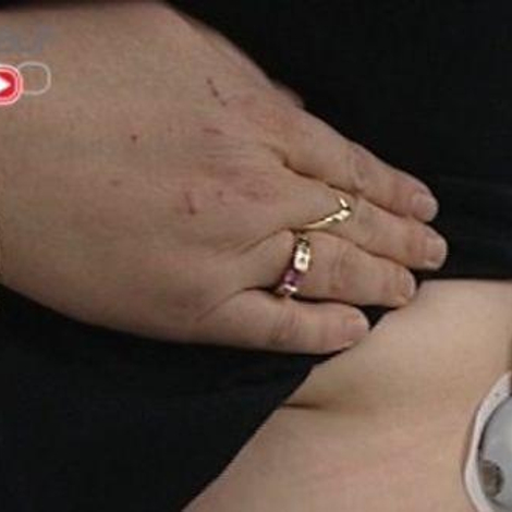Infertilité féminine : de la stimulation à la fécondation