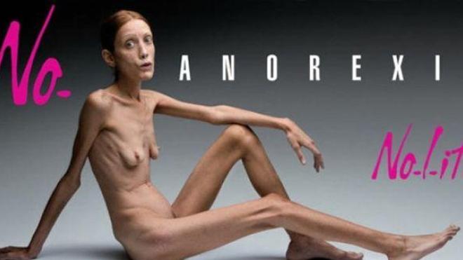 Mort d'Isabelle Caro, ex-mannequin anorexique engagée