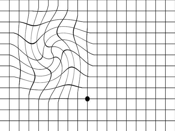Déformation possible d'un quadrillage perçu depuis un oeil atteint de DMLA.