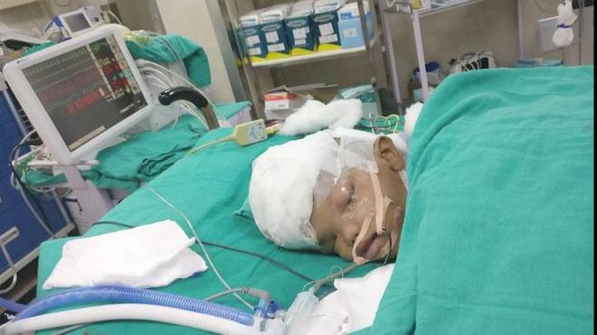 Un des deux enfants après l'opération