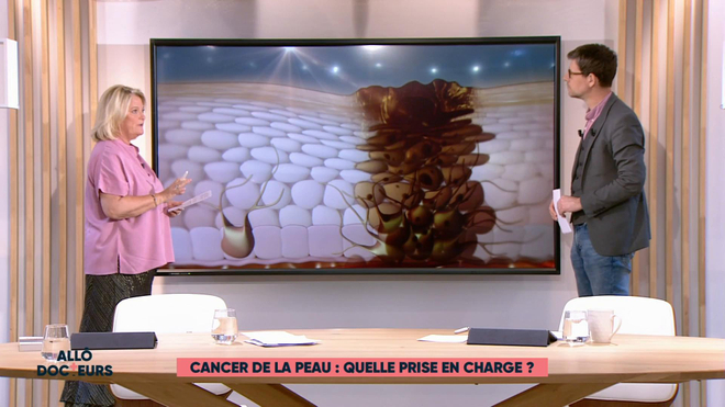 Marina Carrère d'Encausse et Philippe Charlier expliquent comment reconnaitre un mélanome.