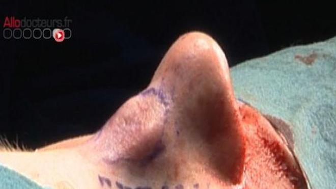 Une fracture du nez mal soignée en vaut deux !