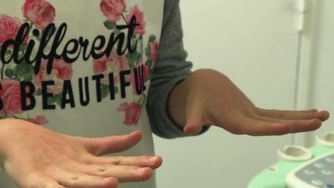 Rhumatismes : les enfants aussi