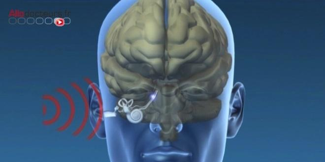 Le son, une source d'information et de stimulation pour le cerveau