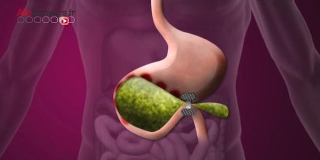 Dérivation de l'estomac dans l'intestin grêle par chirurgie endoscopique