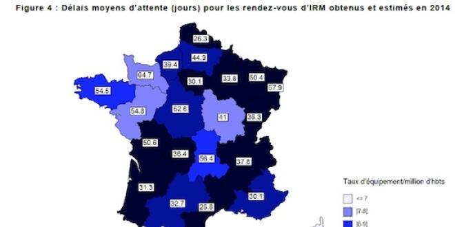 Délais moyens d'attente pour les rendez-vous d'IRM en France