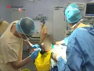 Attention, images de chirurgie : le chirurgien recrée des espaces entre les os du crâne du bébé.