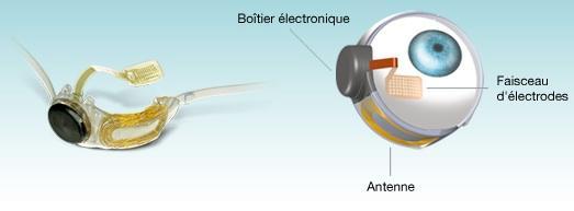 La prothèse est implantée à l'intérieur et autour de l'œil par voie chirurgicale. Elle comprend une antenne, un boîtier électronique et un faisceau d'électrodes. Crédit : Second Sight.