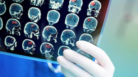Que connaît-on précisément des séquelles neurologiques du Covid?