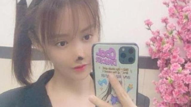 Une actrice chinoise défigurée après une opération du nez