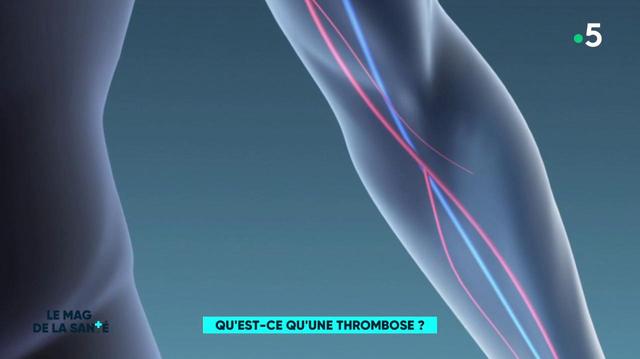 Qu'est-ce qu'une thrombose ?
