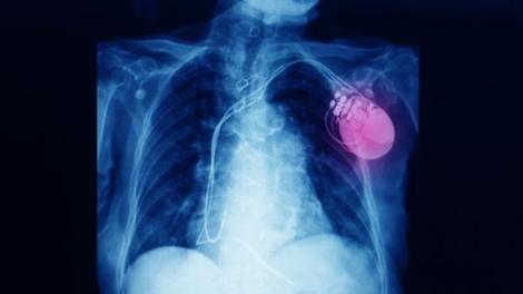 Christian Eriksen va se faire implanter un défibrillateur cardiaque
