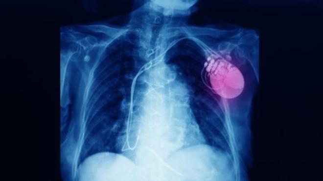 Le DAI est implanté au même endroit que le pacemaker