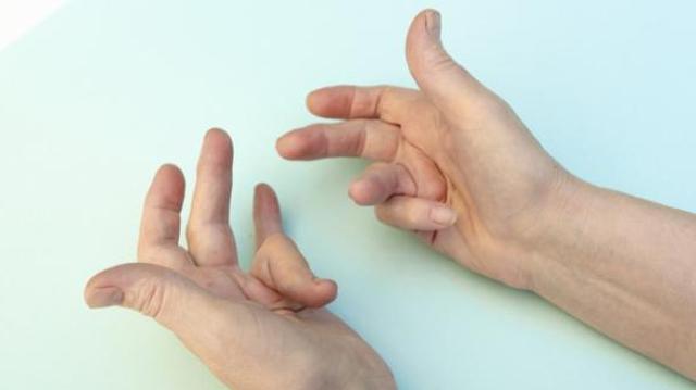Maladie de Dupuytren : quand les doigts se rétractent (2)