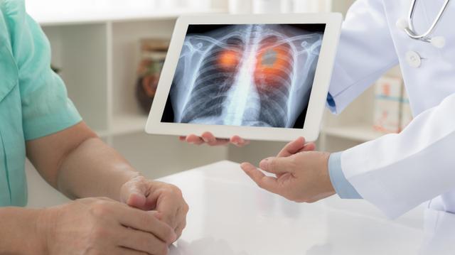 Cancer du poumon : le progrès des traitements