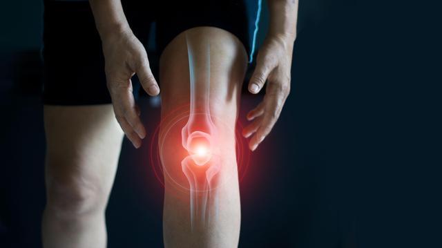 Arthrose du genou : l'ordonnance sportive