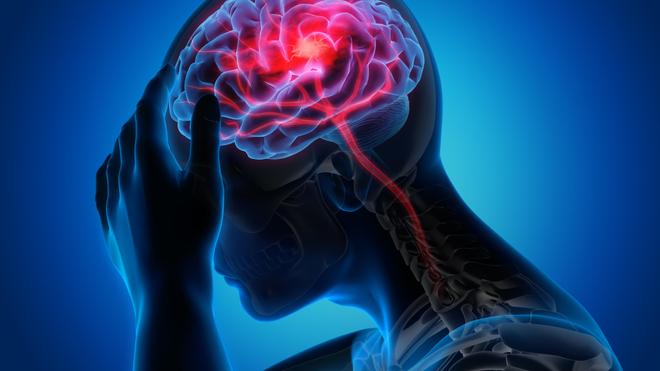 Accident vasculaire cérébral : l'enfant également touché