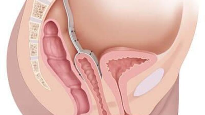 Prolapsus : quand les organes descendent