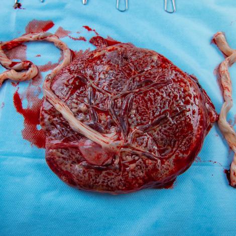 Placenta : un organe éphémère