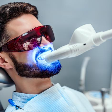Comment avoir des dents plus blanches