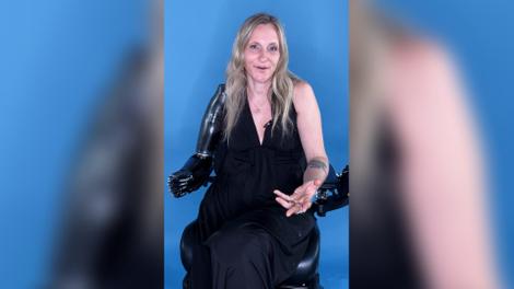 Priscille, première femme bionique française