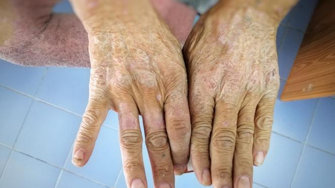 Sclérodermie, quand la peau se durcit