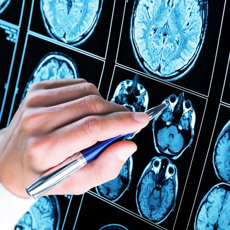 Syndrome de Dravet, une forme sévère d'épilepsie