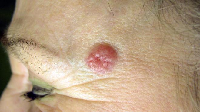 Carcinome cutané : un cancer de la peau