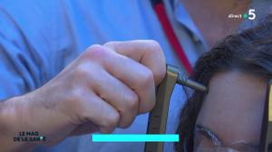 Comment des rayons laser peuvent-ils traiter l'épilepsie ?