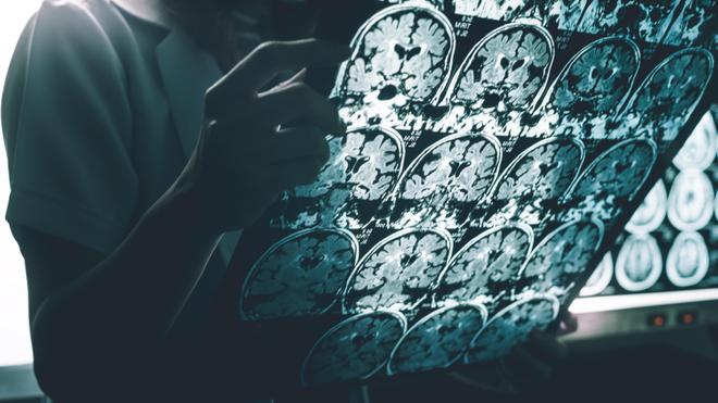 Alzheimer : dépistage, diagnostic, traitements...