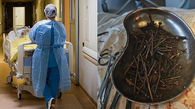 Un kilo de clous et de vis retrouvé dans l'estomac d'un patient lituanien