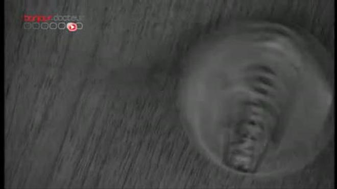Distilbène : une troisième génération de victimes - Reportage vidéo du 11 avril 2011