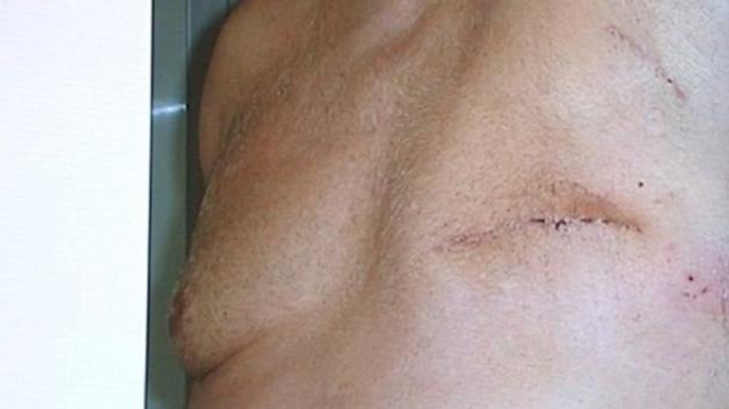 Cancer du sein : les hommes aussi