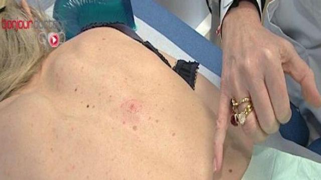 Mélanome, carcinome... surveillez votre peau !