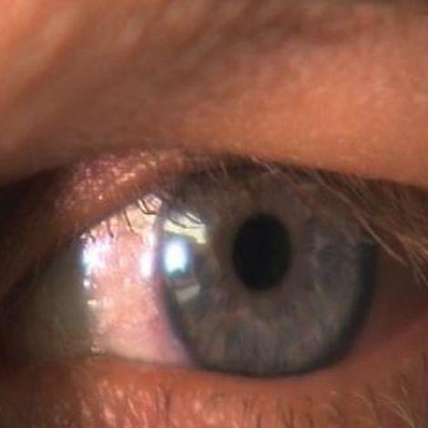 La couleur des yeux et autres secrets de l'iris