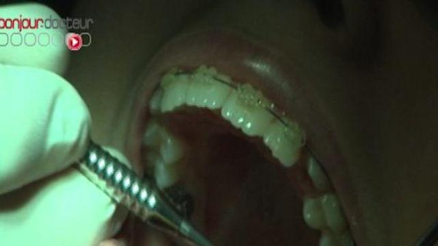 Ch@t : L'orthodontie des adultes